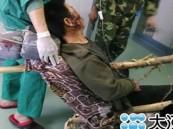 صيني ينجو بأعجوبة من جذع شجرة اخترق جسده