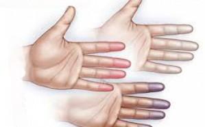 تعرَّف على أعراض مرض «الرينود» الشتوي.. يصبغ الجلد بالألوان