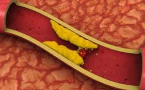 دراسة حديثة: ارتفاع نسبة الكولسترول لدى المرأة يقلل فرص الإنجاب