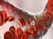 ما هو تسمم الدم