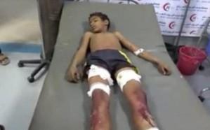 مقتل وإصابة طفلين شقيقين في انفجار مقذوف حوثي بالحديدة