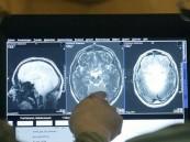 بالفيديو.. لأول مرة علاج جديد لمرضى الصرع بالليزر