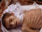 المنظمة الدولية للهجرة تطالب بإجلاء 400 شخص من مضايا لإنقاذ أرواحهم