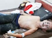 مقتل وإصابة 104 مدنيين في مجازر دموية ارتكبها الأسد على الغوطة الشرقية