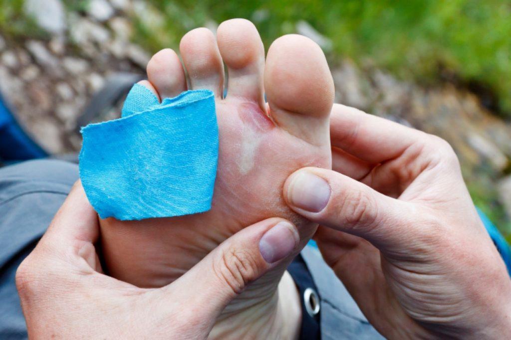 هكذا تحمي نفسك من فطريات القدم