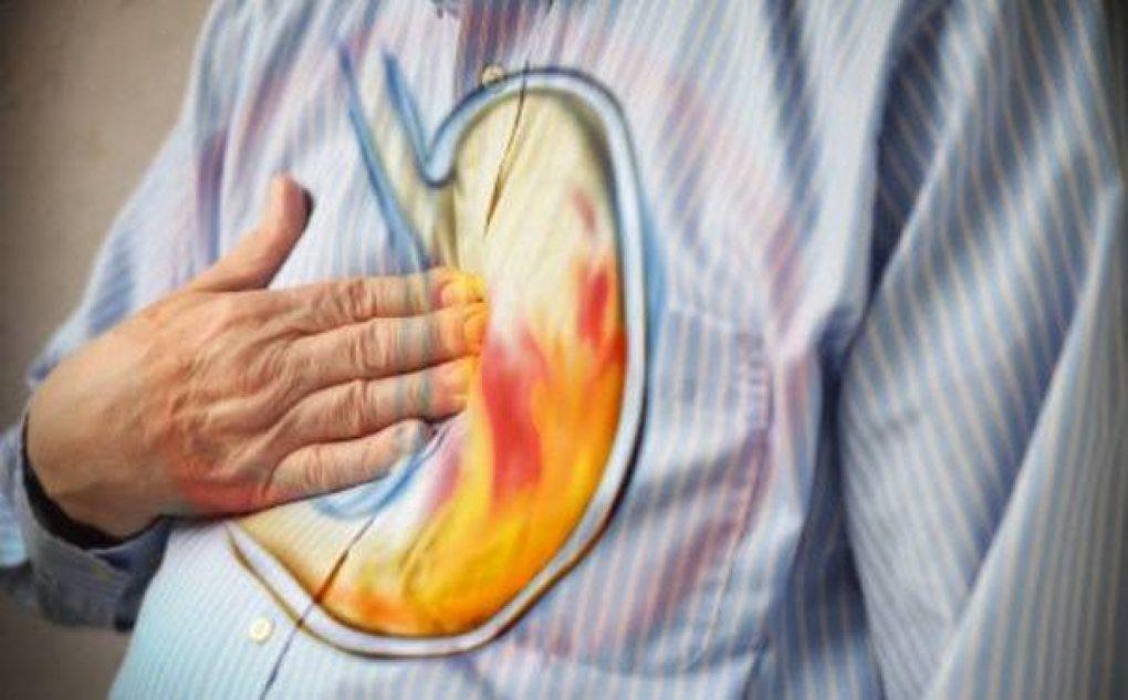 10 أطعمة ينبغي على المُصاب بـ«حرقة المعدة» تجنّبها