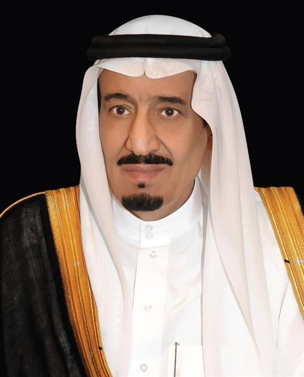 """خادم الحرمين الشريفين يوجه بنقل التوأم السيامي اليمني """"يوسف وياسين"""" إلى الرياض"""