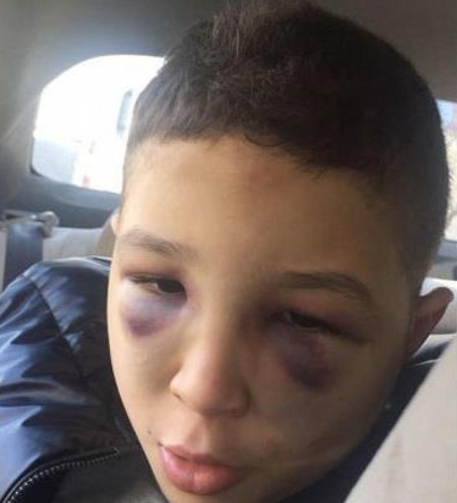 مواطن: تعذيب ابني المصاب بـ«التوحد» داخل دار رعاية بالأردن