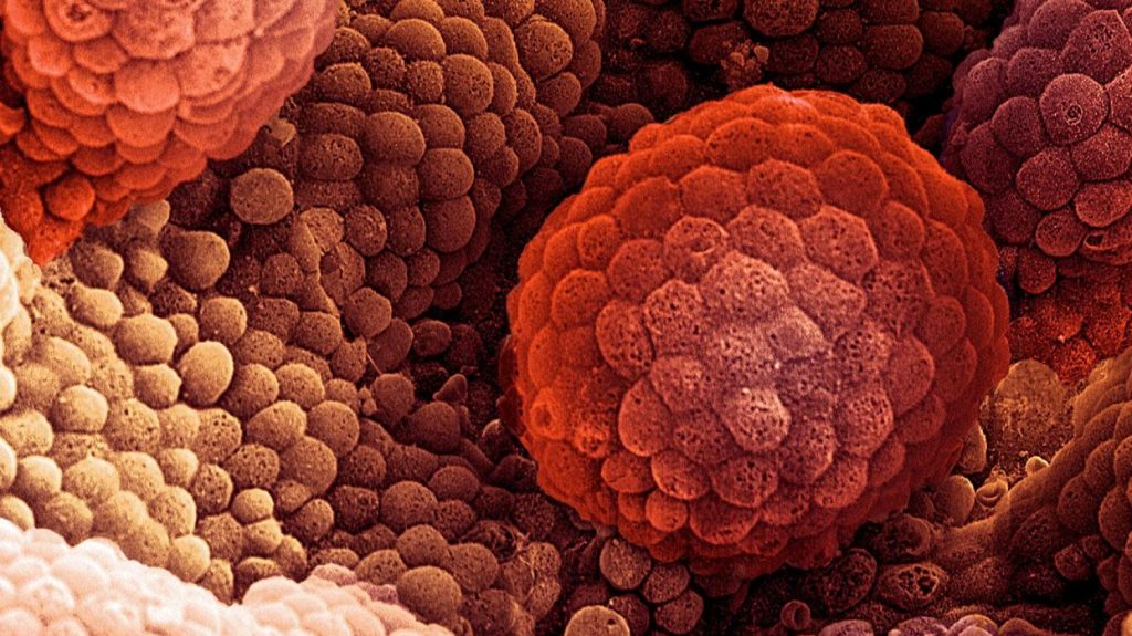 24 ألف إصابة بأورام السرطان في المملكة خلال عام